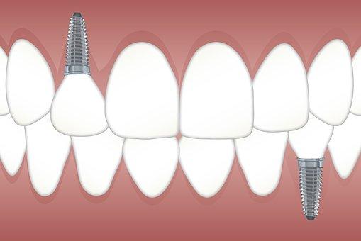 Dental Implants Glen Allen dentist